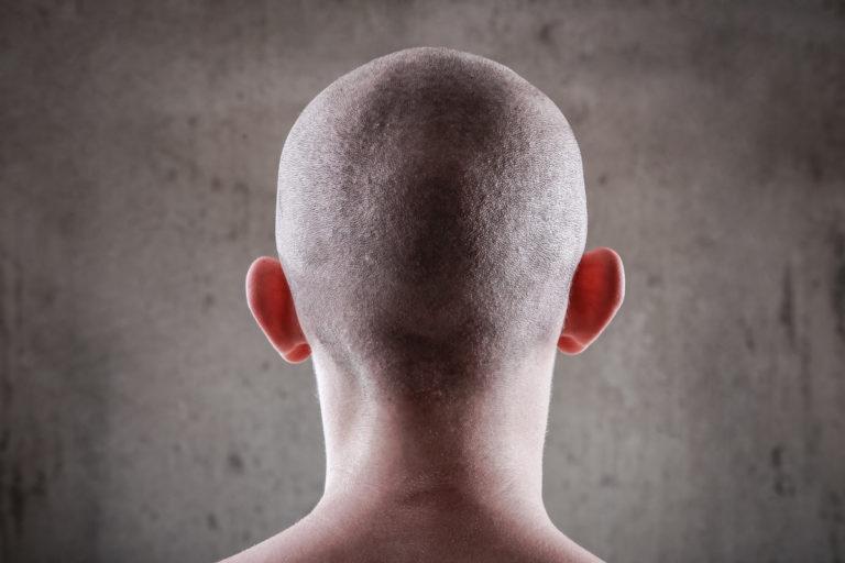 Androgenetischer Alopezie bei Männern - was dagegen hilft