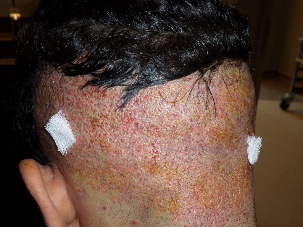Bei der Baarthaartransplantation werden Haare vom Hinterkopf genutzt
