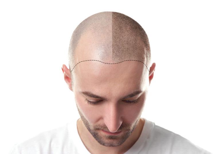 DHI Haartransplantation Methode bei Männern