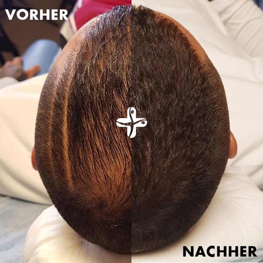Vorher-Nachher-Vergleich bei Haarpigmentierung bei Männern