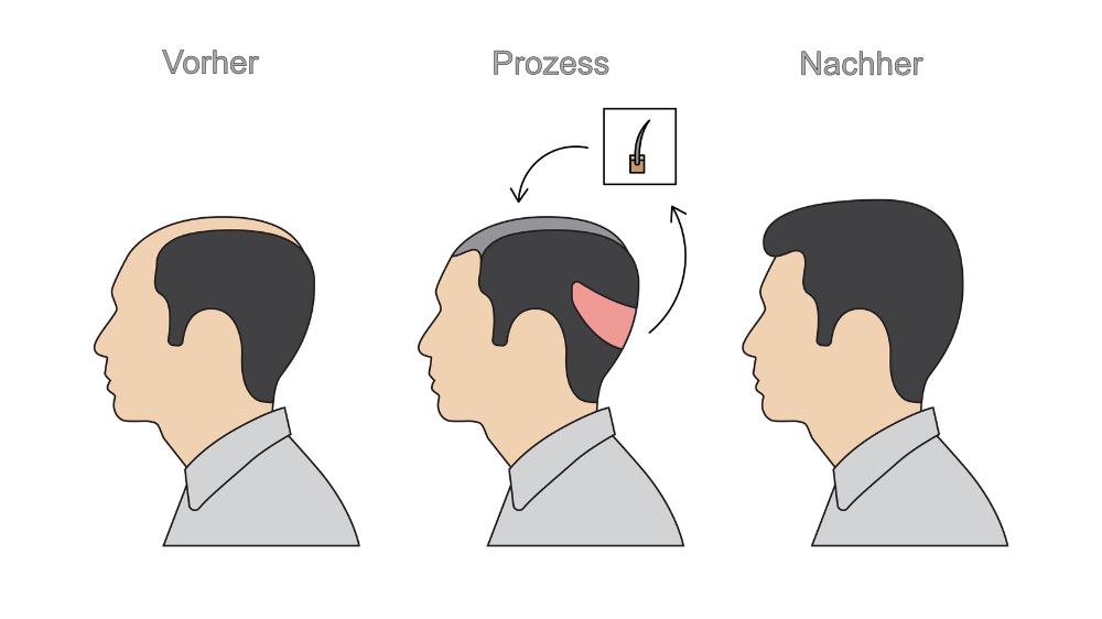 Infografik über den Ablauf einer Haartransplantation. Vorher- und Nachervergleich