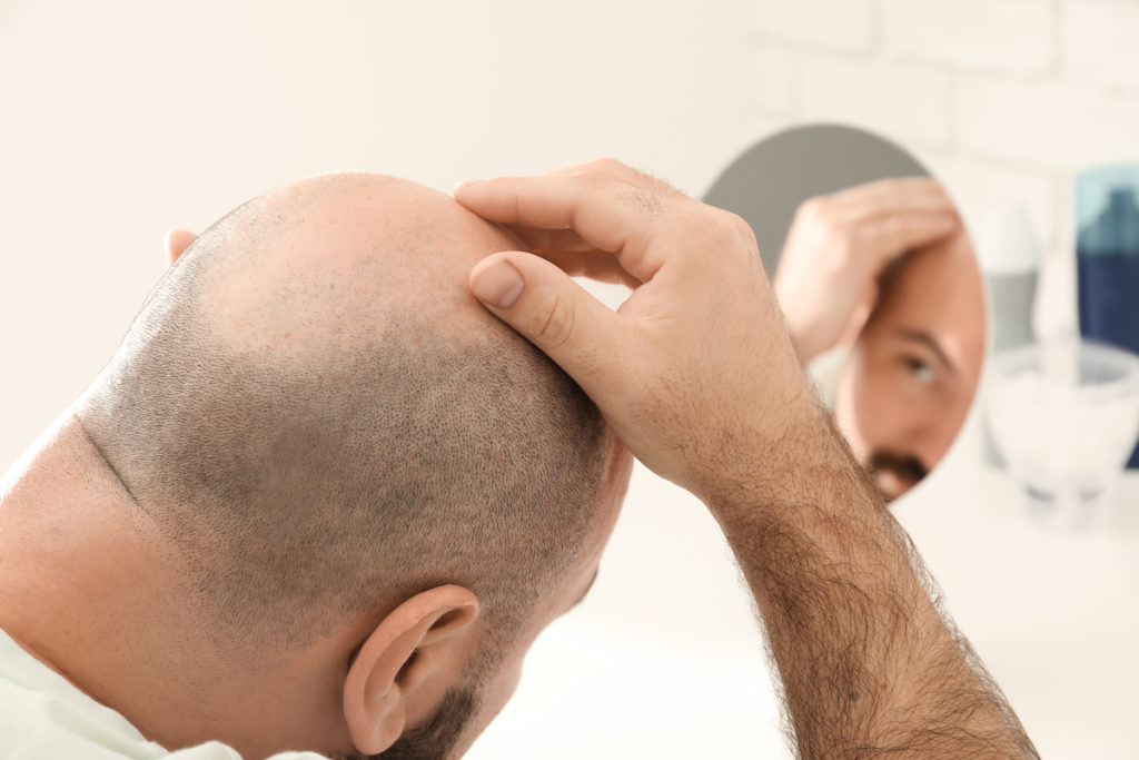Eine Haarwachstumsstörung ist für viele Männer eine psychische Belastung.