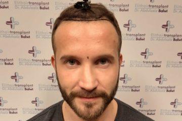 Zink Gegen Haarausfall Wie Es Wirklich Wirkt Finestman