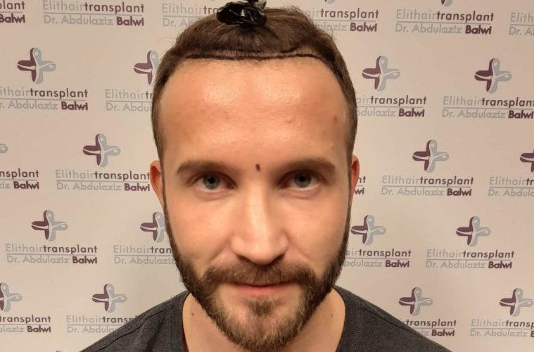 Hohe Stirn Beim Mann Hilft Eine Haartransplantation Op Finestman