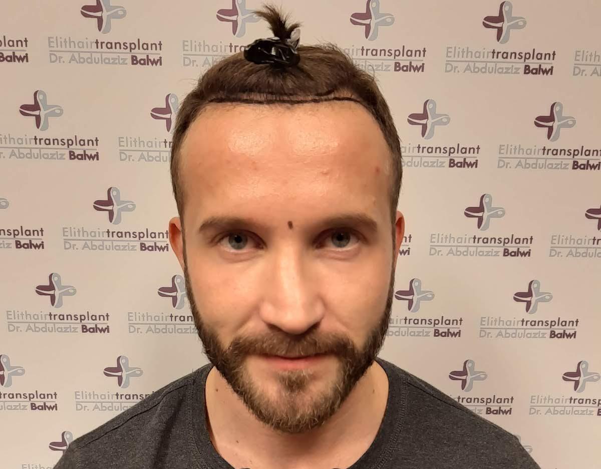Hohe Stirn beim Mann - Hilft eine Haartransplantation Op?  Finestman