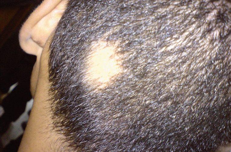 Kreisrunder Haarausfall - was wirklich hilft