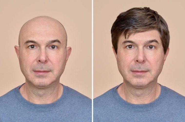 Perücke für Männer - Vorher/Nachher-Vergleich