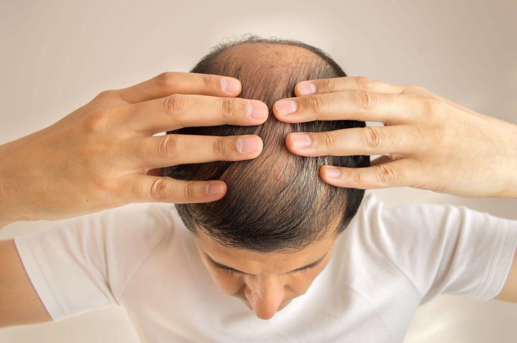 Perücken gegen Haarausfall - Welche Arten gibt es und wie müssen sie gepflegt werden?